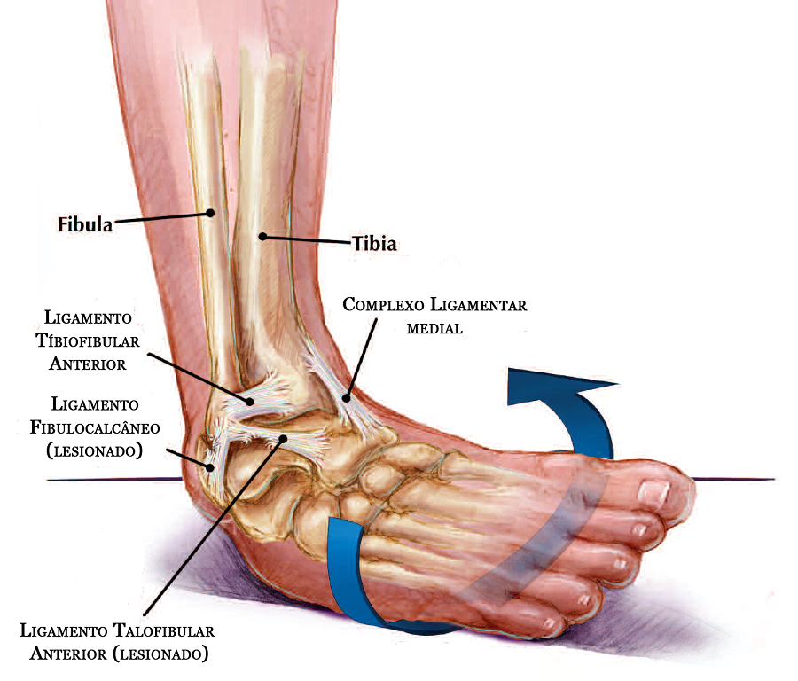 ligamento muscular:
